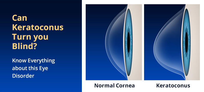 Can-Keratoconus-Turn-you-Blind--Know-Everything-about-this-Eye-Disorder